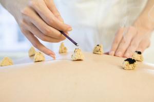 浸大研究證天灸有效改善鼻敏感症狀