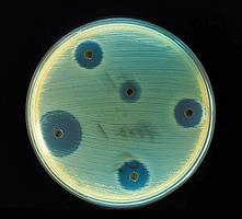 微生物可製新抗生素有效對付抗藥細菌
