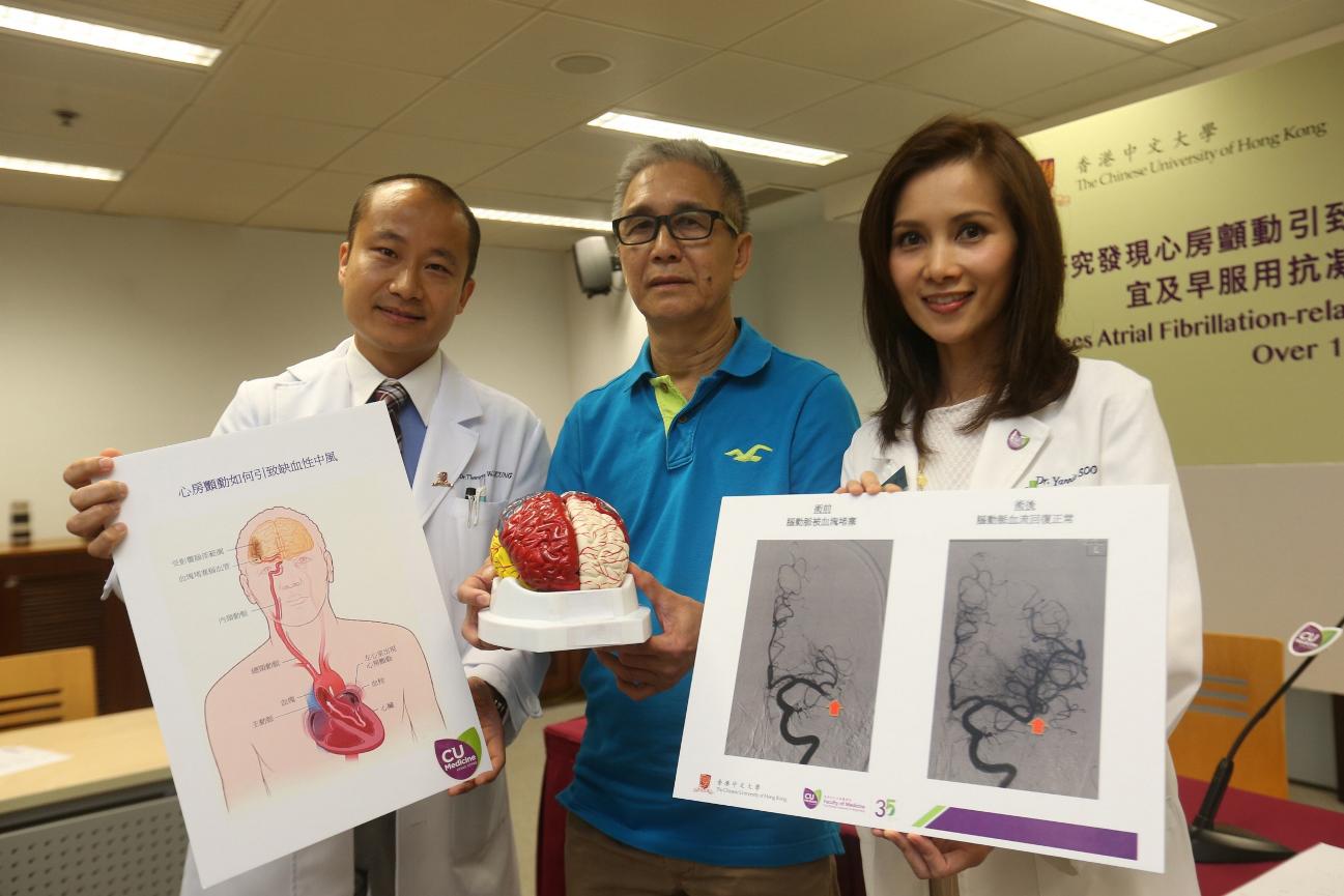 中大醫學院腦神經科團隊研究發現,本港因心房顫動引致缺血性中風的患者過去15年增加3倍。(中大醫學院提供)