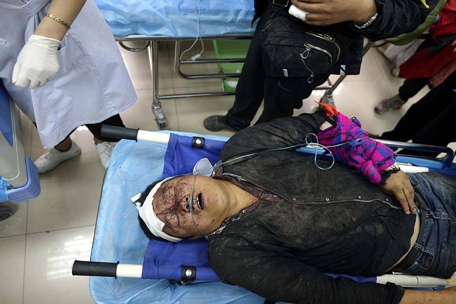 8月10日,在九寨溝縣醫院的一名傷者。(STR/AFP/Getty Images)