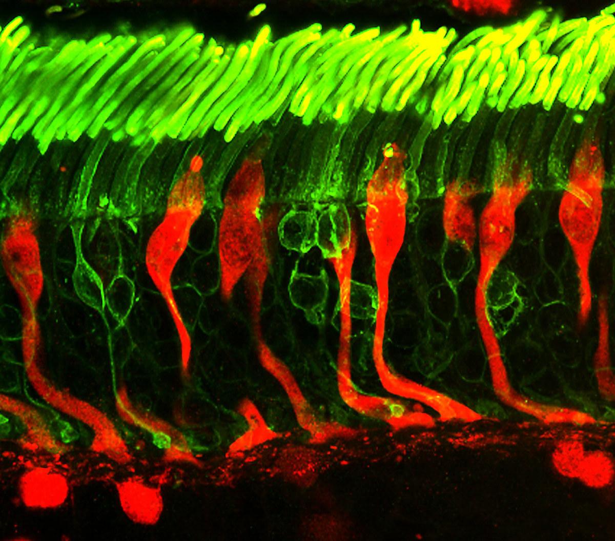 特殊染色方法顯示人眼睛視網膜中的視覺細胞的結構特點。人體的其它部位也存在很多可以感受光線的細胞。(flickr)