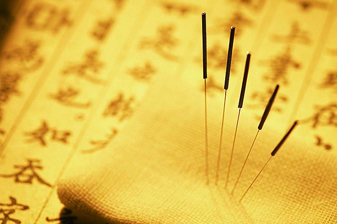針灸是針法和灸法的合稱。首要是學會人體的各穴位。(大紀元資料圖片)