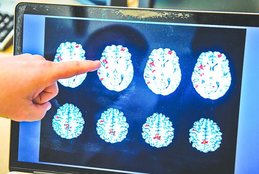 研究發現幽默如何改變大腦