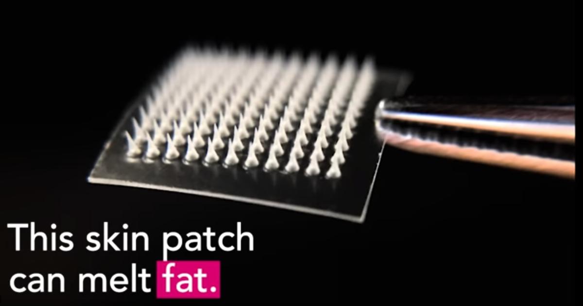 一種納米貼片可以達到局部減肥的作用。(影片截圖)
