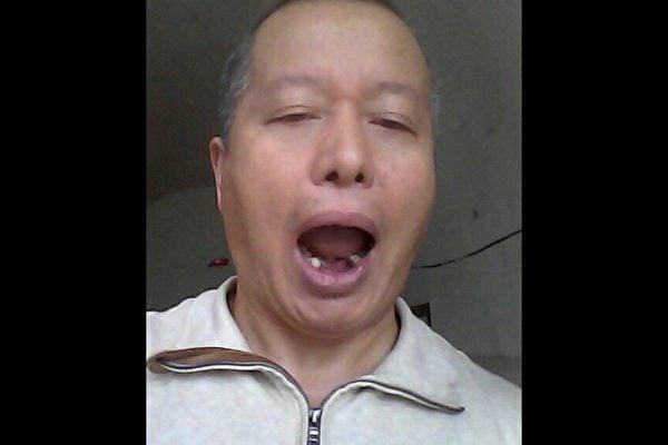 著名維權律師高智晟被中共迫害得牙都掉落了。(視像擷圖)