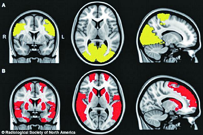 研究發現丟失的大腦連結可能是導致帕金森患者出現幻覺的關鍵。(網絡圖片)
