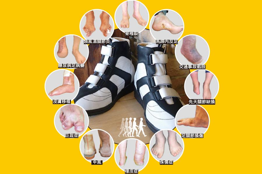 各種嚴重足部問題, Karsten大師通過細心聆聽病者苦惱,並運用他豐富的製作經驗,為病者定製重新行走回復健康的矯形鞋。