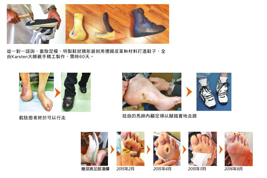 糖尿病足病變患者,在穿著定製足履矯形器的1年後,傷口完全癒合