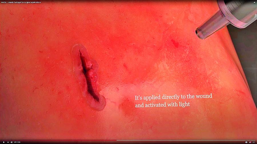 無需手術縫合 新凝膠加速癒合傷口