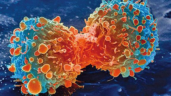 一項研究發現,糖刺激腫瘤的擴散。圖為分裂過程中的肺部癌細胞示意圖。(NIH)