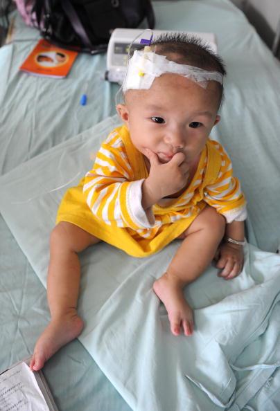 三鹿牌毒奶粉案,造成數以萬計的嬰幼兒出現泌尿系統疾病,其中一些不幸死亡。圖為四川成都一名因毒奶而患腎結石的嬰孩。(Getty Images)