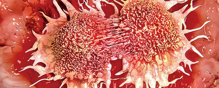 近日發表於《Cell》的研究發現,導致一種癌症發生的基因變異數量介於1到10個之間。(網絡圖片)