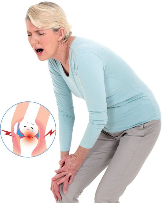 膝蓋疼痛難彎曲 可能是貝克氏囊腫