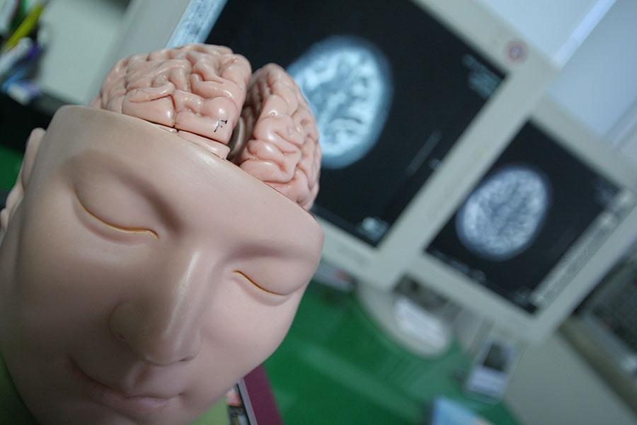 在南韓,腦中風在整體疾病死亡原因中佔據第二位。世界經合組織(OECD)的一項調查報告顯示,南韓對腦中風的治療水平在世界居首位。(newsis)