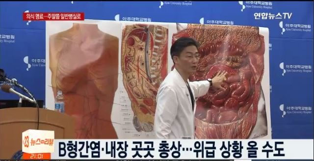 投誠南韓的脫北士兵經南韓醫生的精心治療,9天後已經完全恢復意識,健康也迅速好轉。圖為22日脫北士兵的主治醫師李國宗在新聞發佈會上發佈脫北士兵的病情報告。(韓聯社電視擷圖)