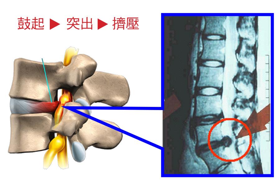 椎間盤突出嚴重就會壓迫脊椎,從而造成腳趾、腳腕或膝蓋以下出現麻痺。