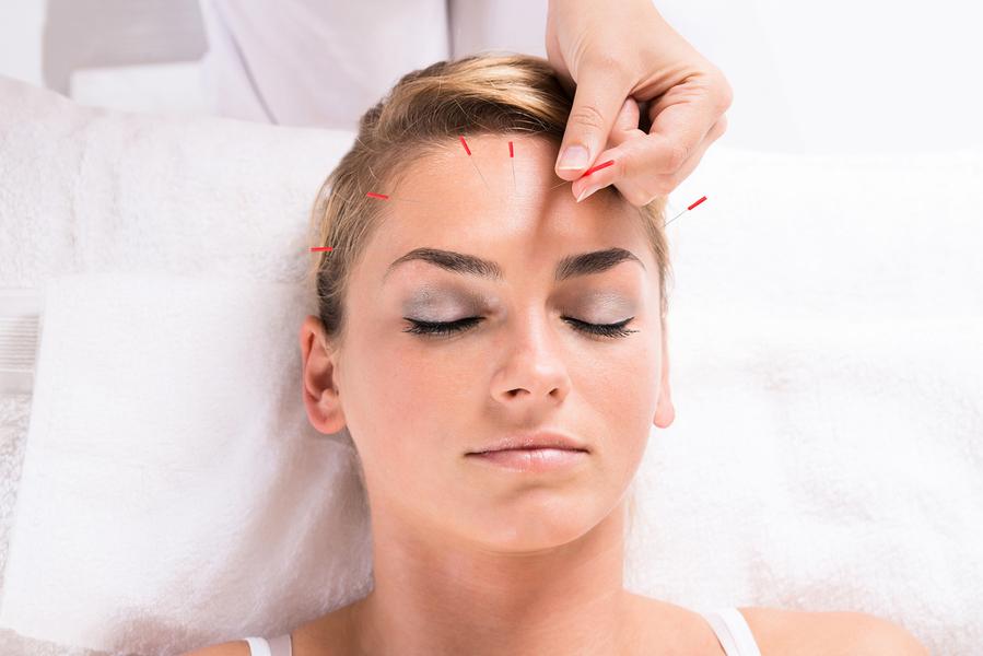 阻止皺紋爬滿臉 針的很簡單