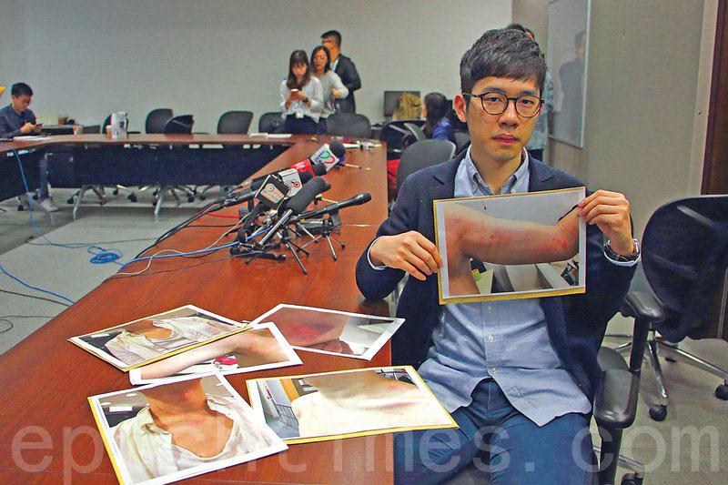 香港眾志羅冠聰今年1月召開記者會,講述在台北和香港機場分別遭中共外圍組織滋擾和襲擊的經過。(大紀元資料圖片)