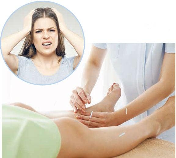 頭痛醫腳 古典絡刺療法治癒多年慢性頭痛