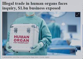 澳審議法律 阻接受非法器官移植