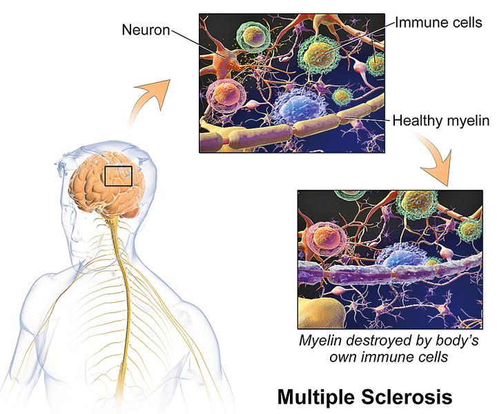 研究:腸道細菌與神經疾病有關