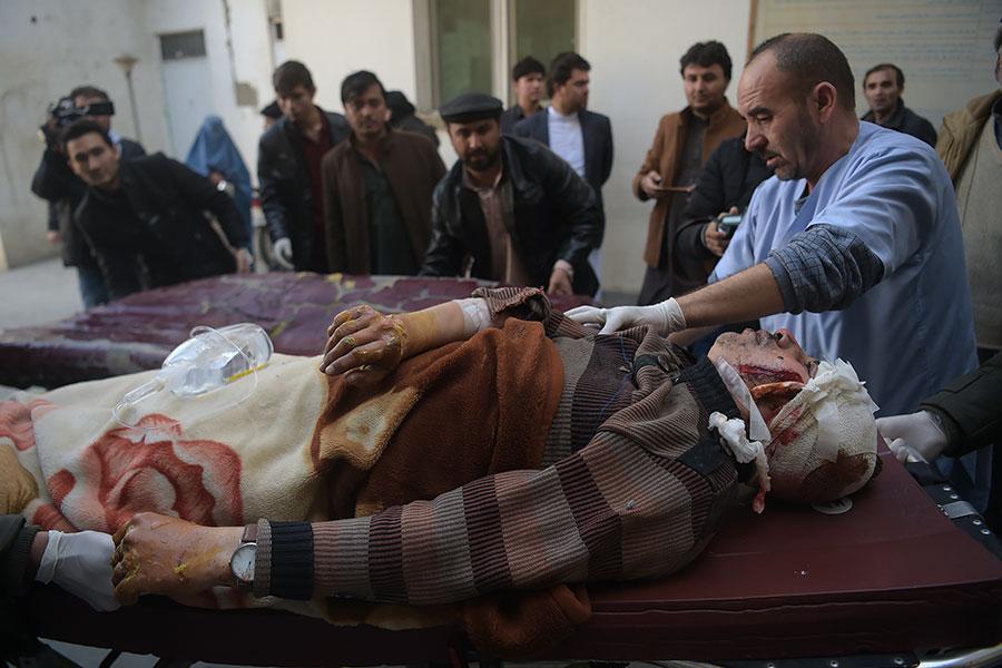 阿富汗首都喀布爾(Kabul)今天(28日)發生自殺炸彈襲擊事件,造成至少40人死亡、30人受傷。圖為受傷的民眾被送到醫院搶救。(AFP PHOTO/SHAH MARAI)000_VG527