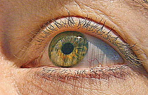 FDA批准基因療法治療遺傳性失明