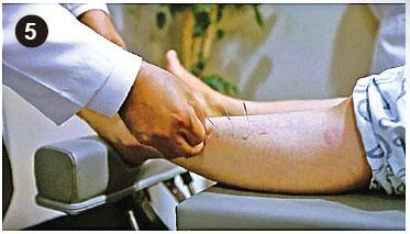 然後在左腳施針,進行動作針法(MSAT)