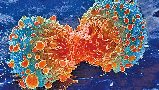 激活REV-ERBα和REV-ERBβ可以顯著抑制腫瘤細胞的生長,但對於健康細胞卻無影響。(NIH)