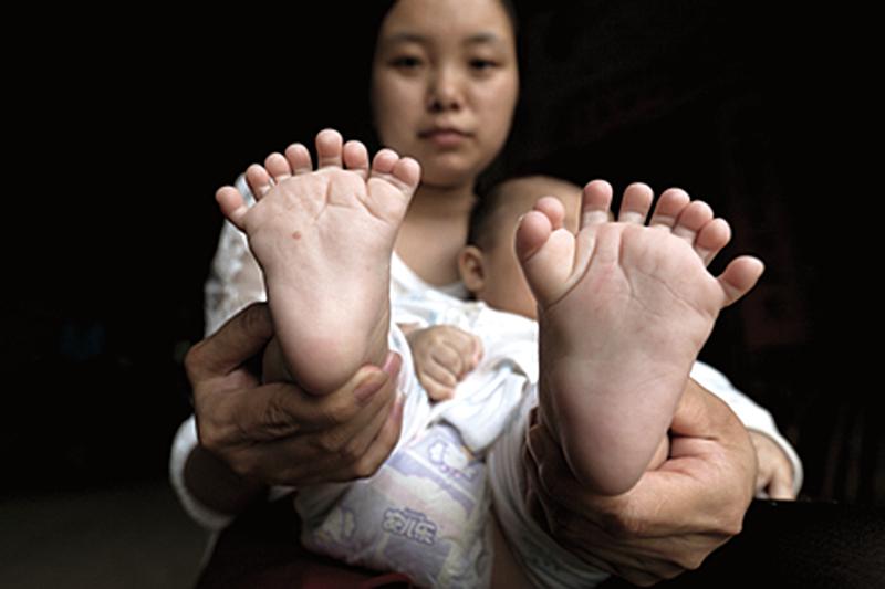 男嬰患多指症 手指腳趾共31根
