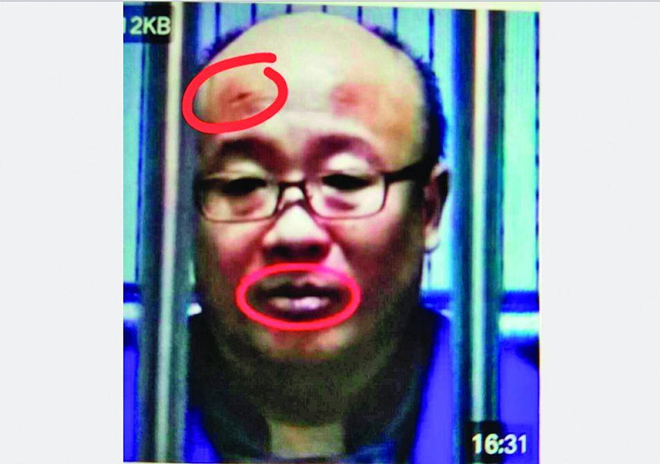 涉非法集資案的錢寶網實際控制人張小雷在央視認罪畫面。質疑者認為張小雷額頭上有明顯傷口,嘴唇有紫色瘀跡。(知情者提供)