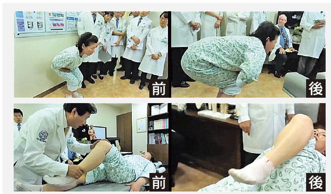 金女士接受自生療法前和後的對比。