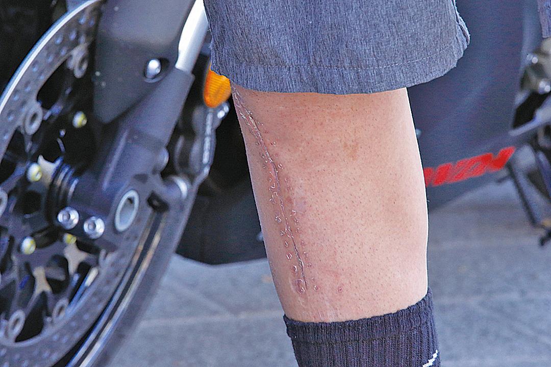 疤痕組織由於缺乏脂肪細胞或毛囊,而且充斥著大量肌成纖維細胞使其外觀和周圍皮膚有著明顯的不同。(Darrian Traynor/Getty Images)