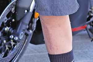 新發現可令受傷皮膚不長疤