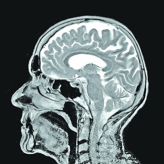 研究者們利用MRI掃瞄來識別,當人表現出好鬥時,哪些大腦區域進入活躍狀態。(Pixabay)