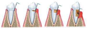 牙周病症似流行性感冒 看錯科別可能致命
