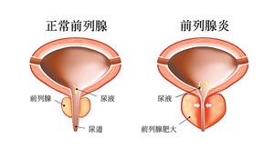 中西醫治療慢性前列腺炎