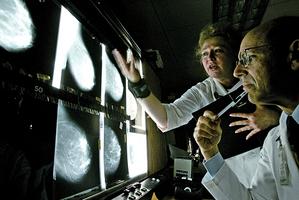 新發現有助治療侵略性乳癌