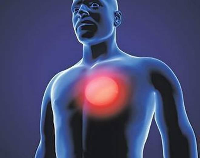 一種稱為「itaconate」的生物化學物質,是巨噬細胞開啟或關閉的開關,能通過這一機制抑制炎症的發生。(Getty Images/iStockphoto)