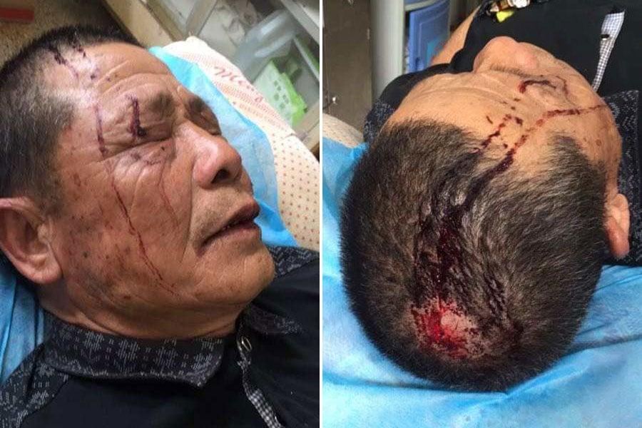 4月5日,廣東汕頭市潮南區仙城鎮東浮山村發生一宗開車撞人事件,造成一死二傷。(受訪者提供)