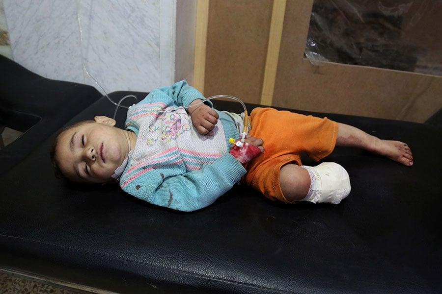 敘利亞當地人表示歡迎美英法聯合對阿薩德生化武器地點進行的攻擊行動,他們認為這是在懲罰阿薩德對平民的殺戮。圖為2018年美國支持的武裝力量控制的東古塔(烏塔大馬士革)地區,一名孩童遭受阿薩德化武攻擊後,被送往醫院救治。(MOHAMMED EYAD/AFP/Getty Images)
