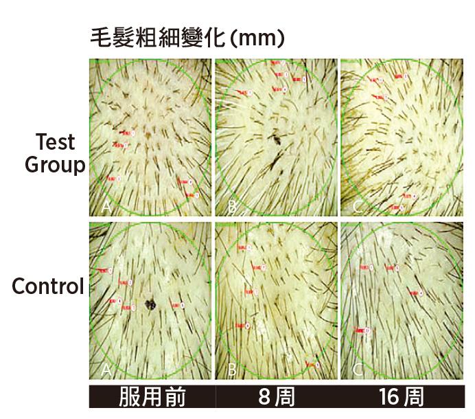 毛髮粗細實驗:服用8周可提升25%的粗細度,服用16周可提升36.5%的粗細度。