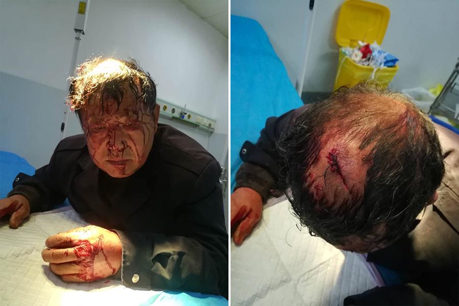 4月17日凌晨,山東青島市嶗山區中橫街道辦山東頭村的6戶村民遭暴力強拆。圖為受傷村民。(受訪者提供)