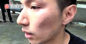 林鄭稱已要求大陸 徹查本港記者遇襲