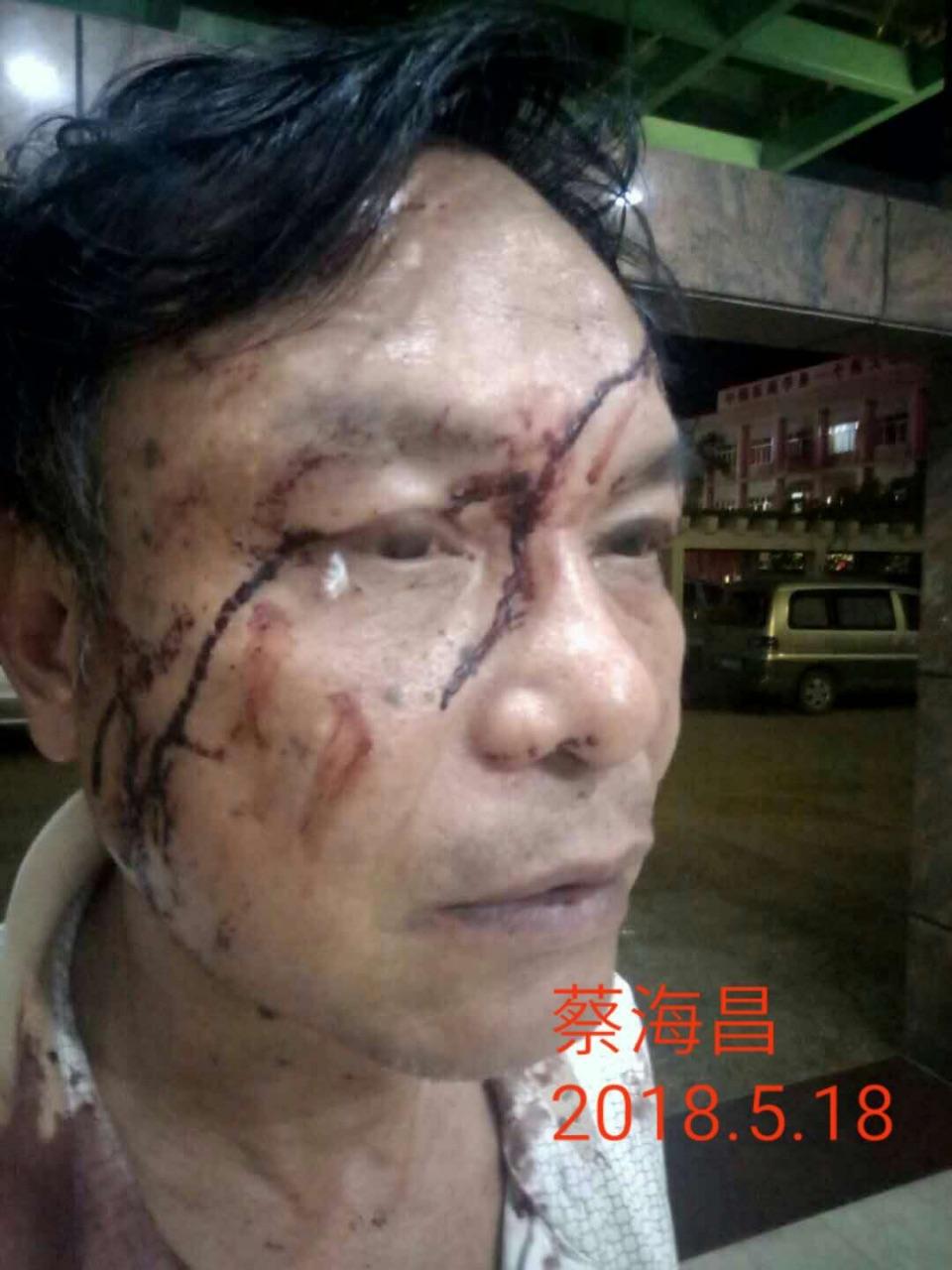 5月22日,廣東羅定市文化廣場聚集了千餘名參戰老兵,他們為自己的戰友劉天榮、蔡海昌等9人進京上訪被打事件討說法。圖為被打的老兵。(受訪者提供)