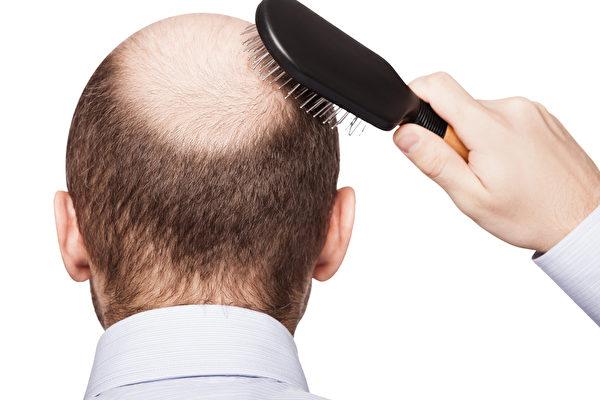 研究發現,一種原本用於治療骨質疏鬆症的藥物可用來治療禿頂。(Shutterstock)
