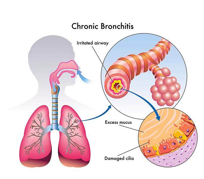 戒煙後受損的肺部 會痊癒嗎?