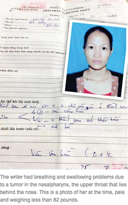 疾病纏身的越南女商人Nguyen Thi Tuoi,當時她的體重只有82磅(約73斤)。(本人提供)
