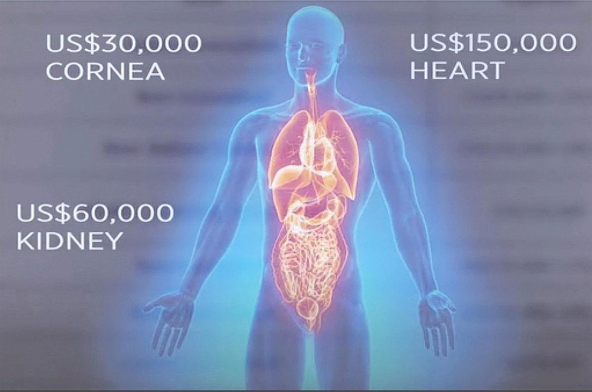 「中國國際器官移植網絡輔助中心」在其網頁列出了針對外國病人的器官價格──心臟15 萬美元,腎臟6 萬美元,眼角膜3 萬美元。(影片截圖)