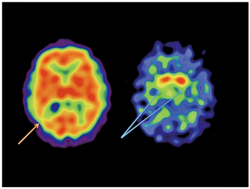 SPECT大腦掃瞄技術能測繪大腦活動並凸顯缺氧的區域。(NIH)
